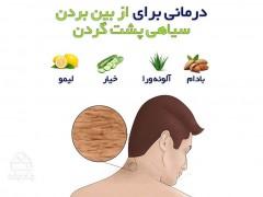 سلامت - درمانی برای از بین بردن سیاهی پشت گردن